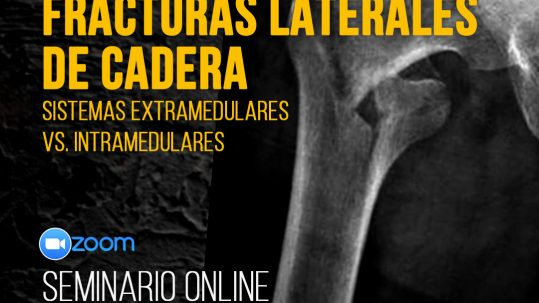 Webinar Sistemas Extramedulares VS Intramedulares en Fracturas Laterales de Cadera